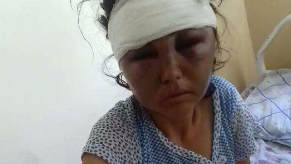 Женщина из Булунгура, пострадавшая от побоев мужа - Sputnik Узбекистан