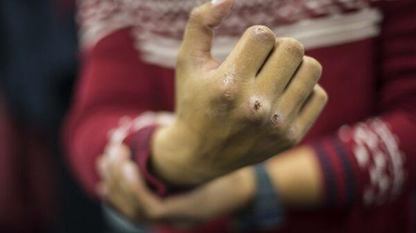 Мужчина показывает разбитый кулак, архивное фото - Sputnik Узбекистан