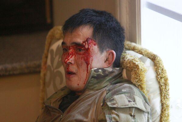 Киргизский полицейский, пострадавший во время спецоперации по задержанию бывшего президента Киргизии Алмазбека Атамбаева - Sputnik Узбекистан