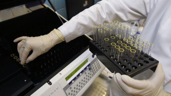 Provedeniye analiza v laboratorii - Sputnik Oʻzbekiston