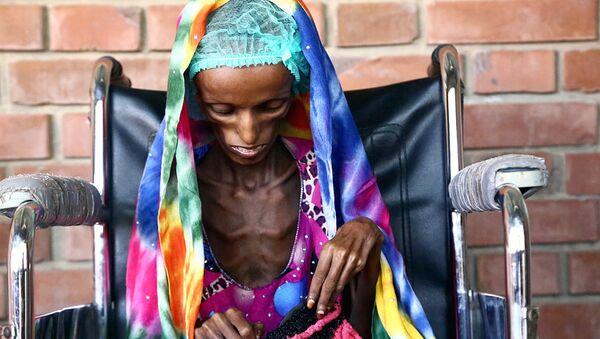 18-летняя пациентка больницы в Йемене, страдающая от истощения - Sputnik Ўзбекистон